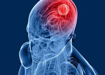 Brain-Tumour-Odisha