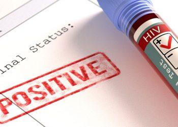 HIV Positive odisha