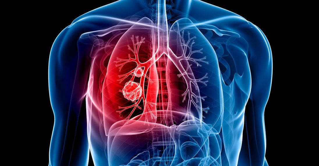 lung cancer, This AI system spots often-missed lung cancer tumours