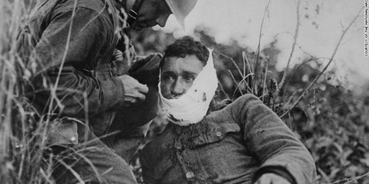 A US soldier treats a comrade's wound in France in 1918. World War I changed the US in ways that linger