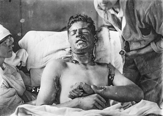Mustard gas caused the lion's share of chemical weapons casualties in WWI