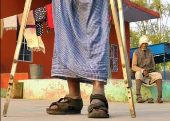 Leprosy cases on rise in Ganjam dist