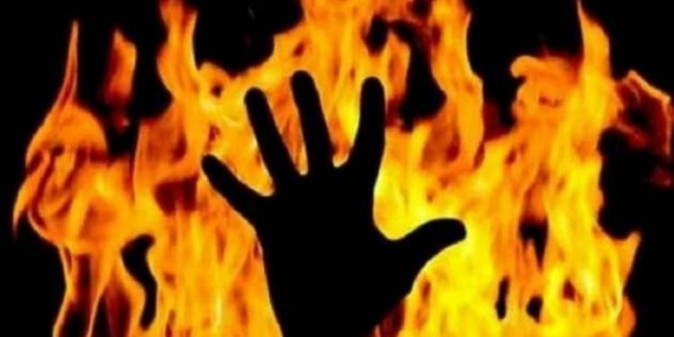 Minor brother, sister suffer burns, condition critical