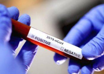Coronavirus negative