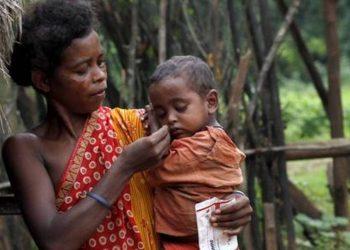 Malnutrition among kids on rise in Mayurbhanj