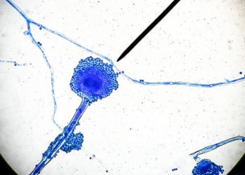 Pic Credit: www.livescience.com