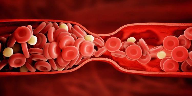 Pic Credit: vascularhealthclinics.org